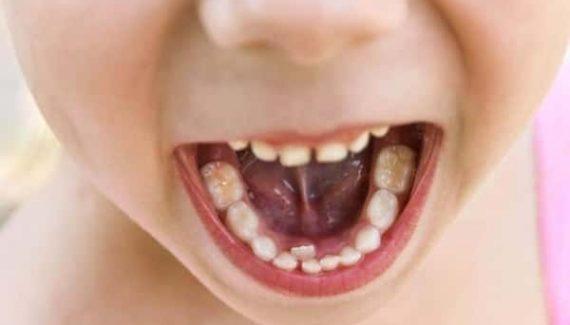 Sonhar com dente cariado