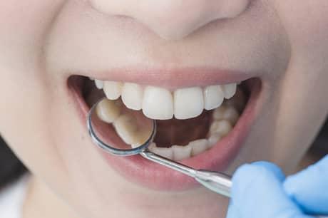 boca e dentes cariando