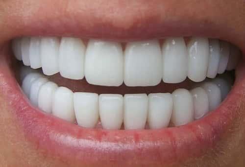 Dentes sujos e amarelos