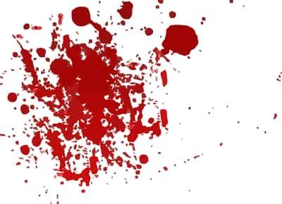Sangue na parede