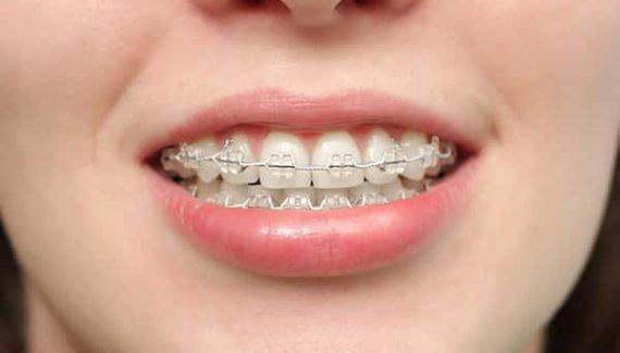 Sonhar com aparelho de dente